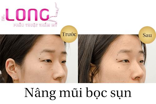 nang-mui-boc-sun-tu-than-co-vinh-vien-khong-1