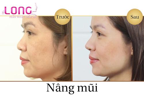 nang-mui-sline-co-sua-lai-duoc-khong-1