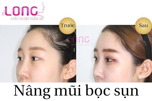 co-bao-nhieu-cach-nang-mui-hien-nay-1