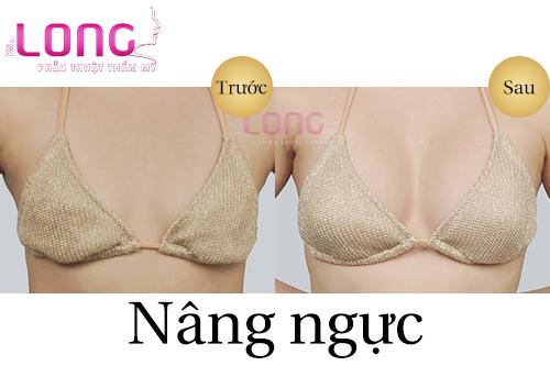 nhung-phuong-phap-nang-nguc-nhanh-nhat-hien-nay-1