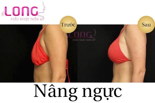 nang-nguc-duong-chan-nguc-co-anh-huong-gi-khong-1