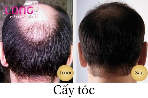cay-toc-co-gay-nguy-hiem-khong-1