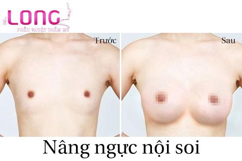 nang-nguc-noi-soi-co-hieu-qua-khong-1