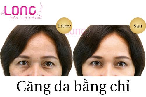 truoc-khi-cang-da-bang-chi-can-luu-y-dieu-gi-1