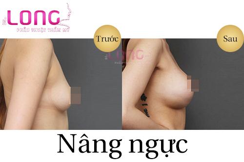 nang-nguc-co-an-toan-va-dep-khong-1