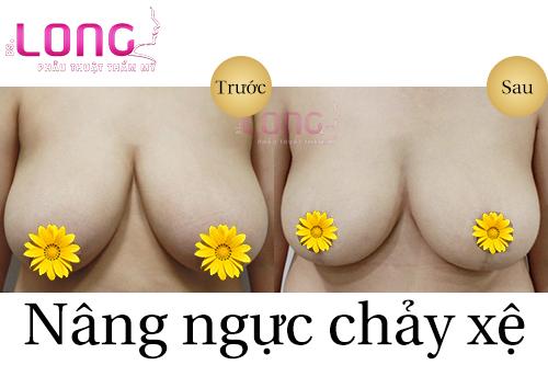 giai-phap-nang-nguc-chay-xe-sau-sinh-co-hieu-qua-khong-1